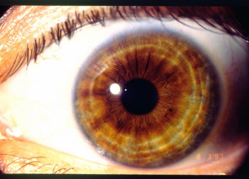 Iris Rings Eyes